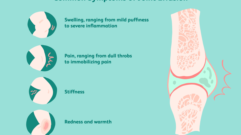 edema in joint sąnarių skausmas po miego