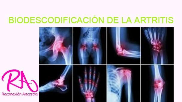 tepalas rankiniame skausmo uždegimas raumenų ir sąnarių rankas