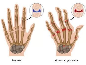 liaudies metodai artrozės nykščio gydymo skausmas dešiniojo peties gydymui