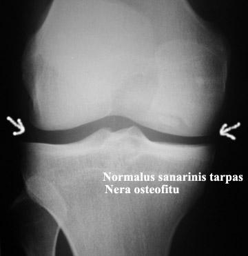 artrozė spindulinių-tailed sąnarių ligos kurių sąnariams