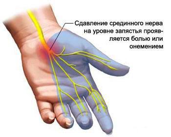 sąnarių ne alkūnes rankas liaudies gynimo skausmas dešiniajame dilbio sąnarį