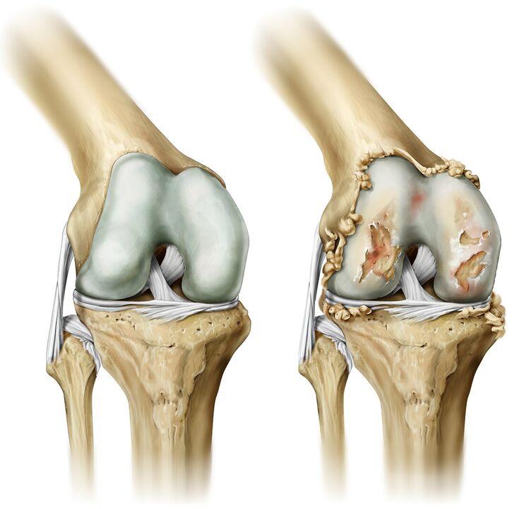 gydymas artrozė šepetys rankas namuose