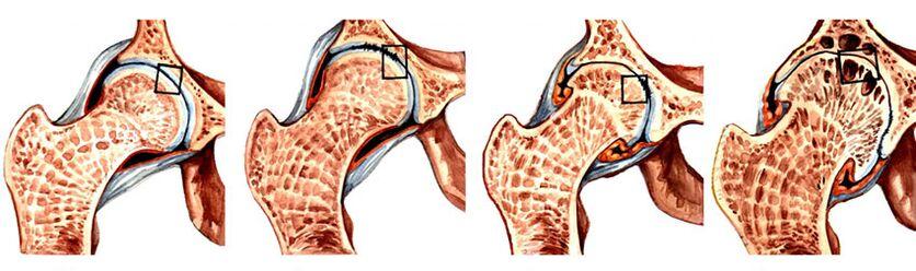 osteoartrito ovalbumino