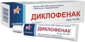 samdinių sąnarių ligos