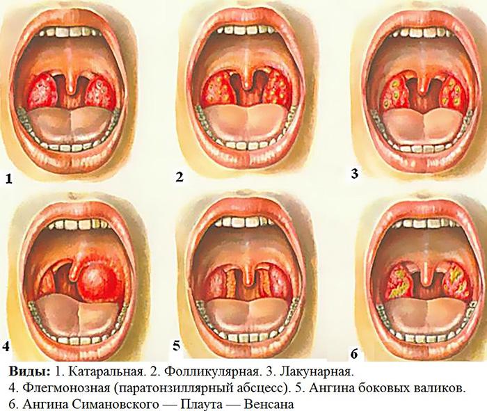 gerklės sąnarių gali būti patinimas reumatas sulyginti ženklus gydymas
