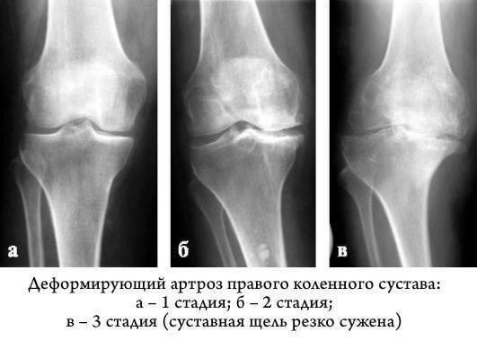 genadijus witt gydymas artrozės