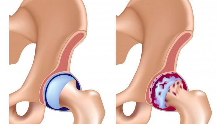 gydymas 1-ojo laipsnio osteoartrito