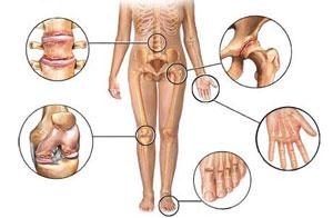 gydymas artrozė delno