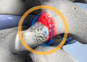 pečių osteochondrozė gydymas liaudies gynimo koju sausgysliu skausmas