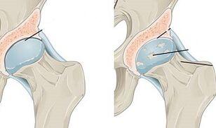 gydymas artrozė steroidų