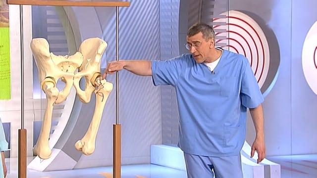 gydymas artrozė tbs