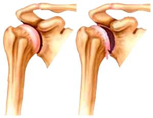 gydymas artrozės iš pečių sąnarių donas už bendrą kainą gydymo