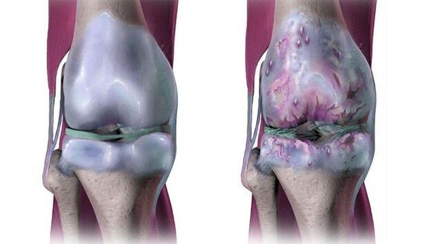 gydymas artrozės ir alkūnės sąnarių