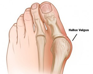 gydymas artrozės ir pėdos nykščio namuose ligos sąnarių