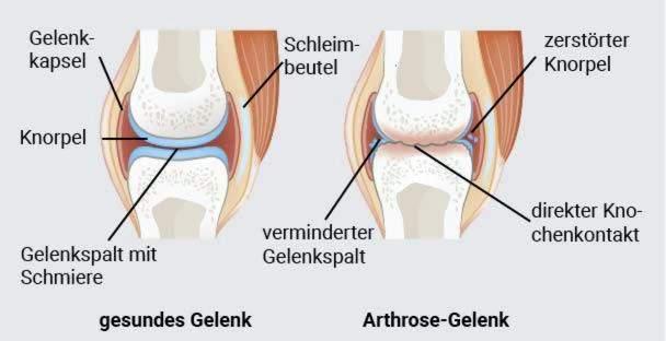 gydymas osteoartrito pečių sąnarių gydymas osteochondrozė liaudies gynimo