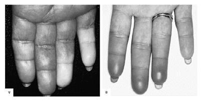 liaudies gynimo priemonės skirtos sąnarių rankas šepečiais gydymo