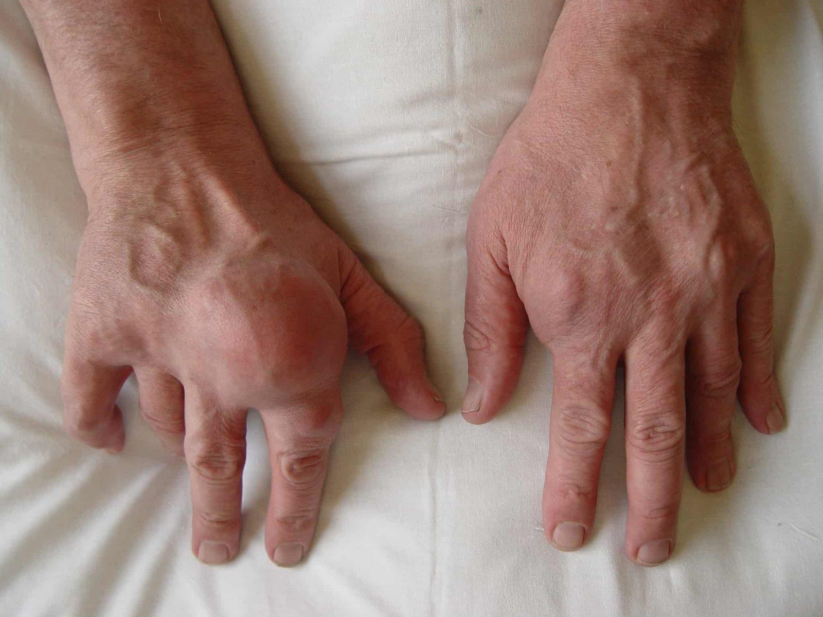 rankų neveikia artritu dėl kokios priežasties sąnariai serga