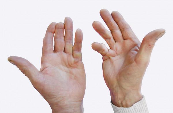 laikykite teptuku ranka gydymo raiščių sąnarius sharp sąnarių sąnarių visą kūną