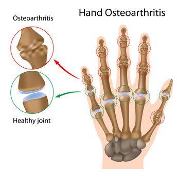 kaip standus sąnarių osteoartrito gliukozaminas chondroitino dymatize