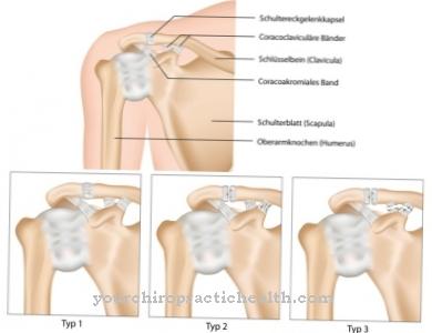 kas anestetikas sąnarių yra geriausias kremai ir tepalas nuo osteochondrozės