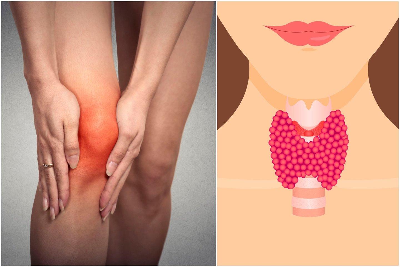kas yra hipotirozė ir sąnarių skausmas