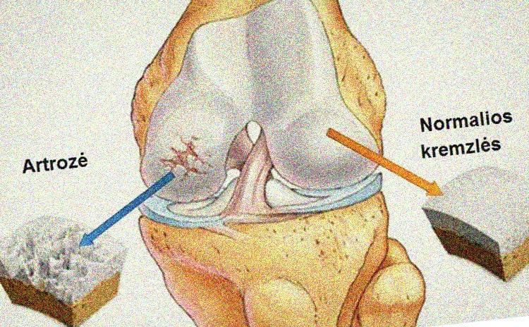 kas yra traktuojama artrozė kaip pašalinti skausmą raumenų ir sąnarių