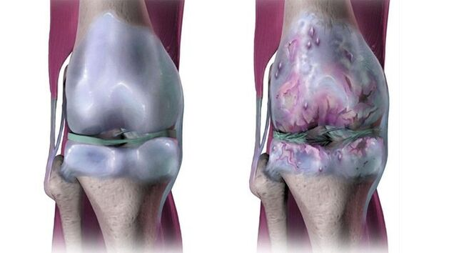 kelio sąnario artrozė ala skausmas