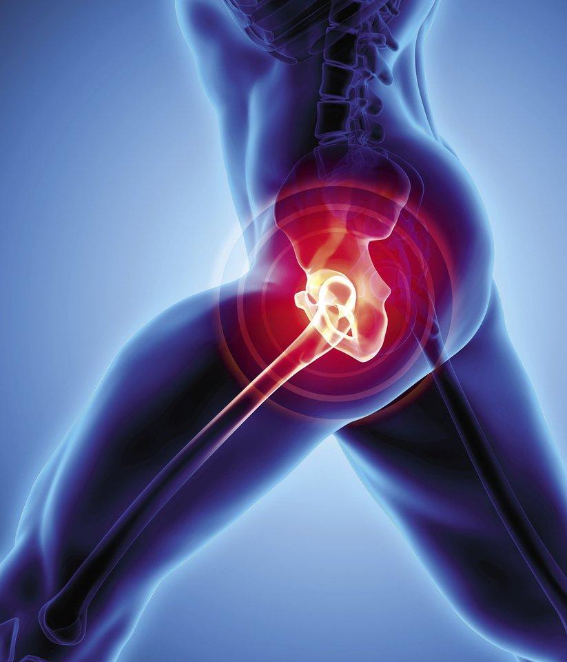 klubo sanario artrozė vaistažolės su sąnarių skausmas
