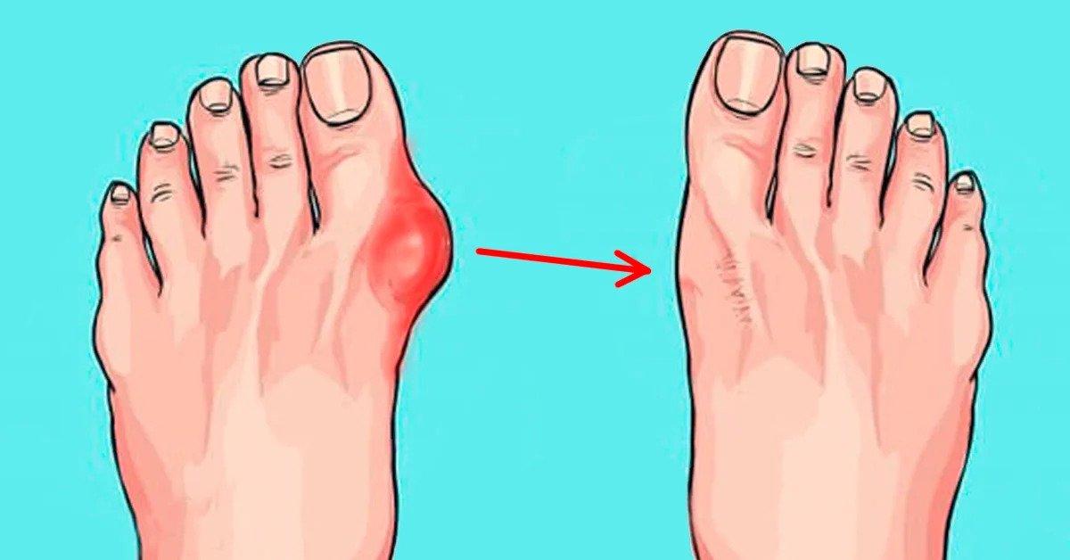 zandikaulio skausmas gydymas skausmas dešinėje gydymo sąnario