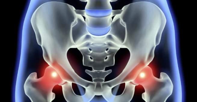 koksas artrozė ir jo gydymas
