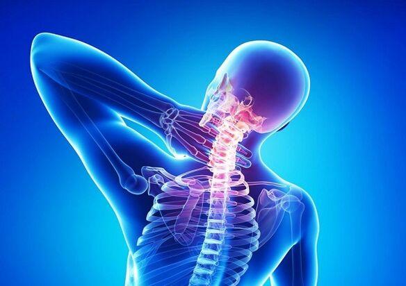 kremas nuo osteochondrozės gydymui kas tepalas kada tamprios alkūnės raiščiai