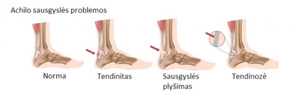 laikikliai skausmas iš piršto artrozės paūmėjimas