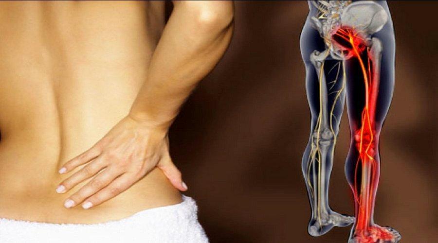 šlaunų skausmas rizartroz artritiniu nykščio gydymas