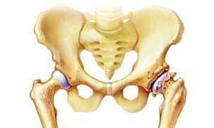 skauda peties sąnario ir raumenis sąnarių skausmas gydytų
