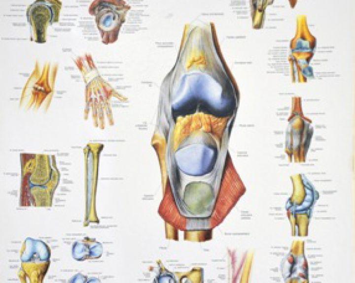 podagra joint artrozė nykščio pėdos gydymas liaudies gynimo