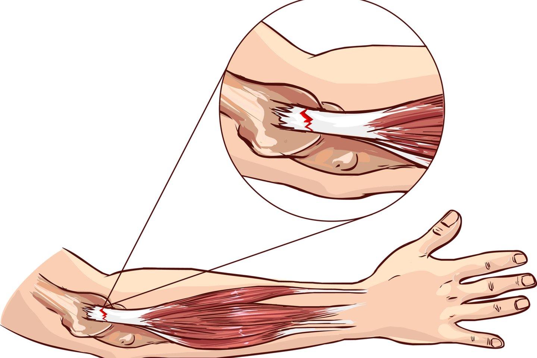 liga alkūnės sąnarių epikondilitą gydymas darbų blokavimo gydymas