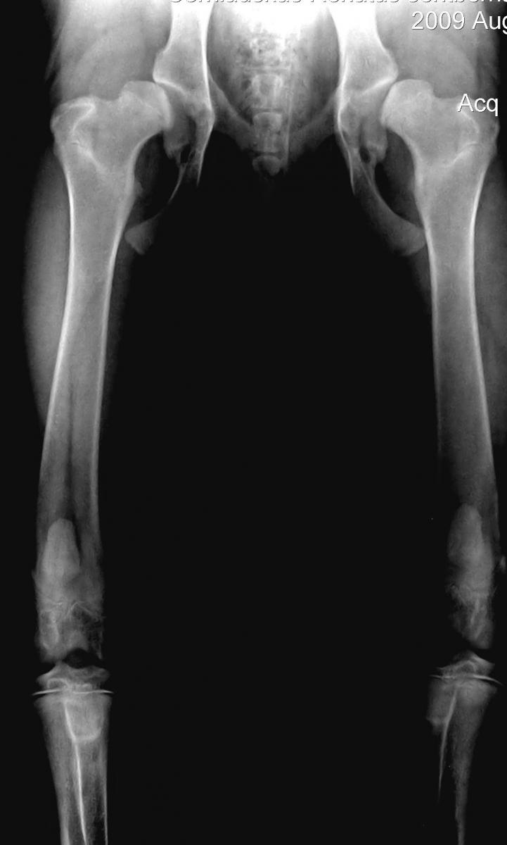 čiurnos osteoartrito gydymui skausmas peties sąnario kai pernešimo atgal gydymas
