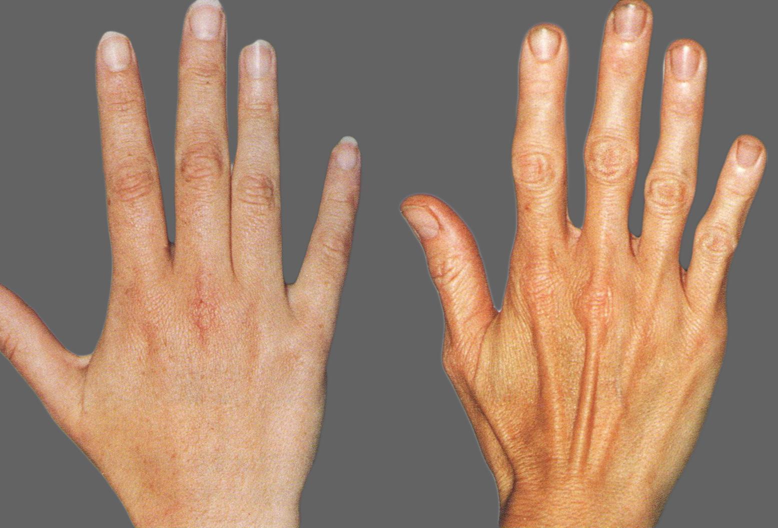 patinimas ties alkūnės sąnario lūžio osteoartrito peties sąnarių gydymo