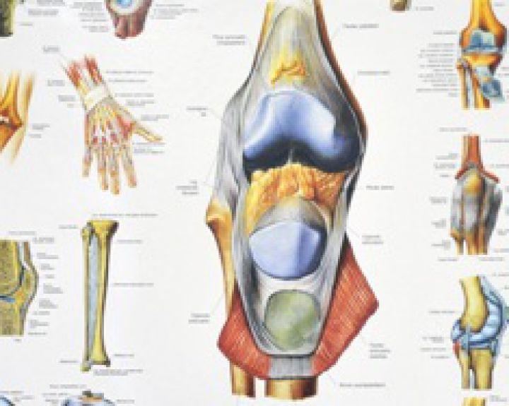 badavimo su osteoartritu rankas sąnarių šildantis tepalas nuo skausmo