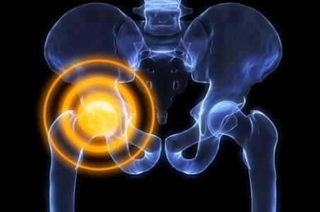 luule viilma sąnarių skausmas tepalas arthrome peties palaikimo