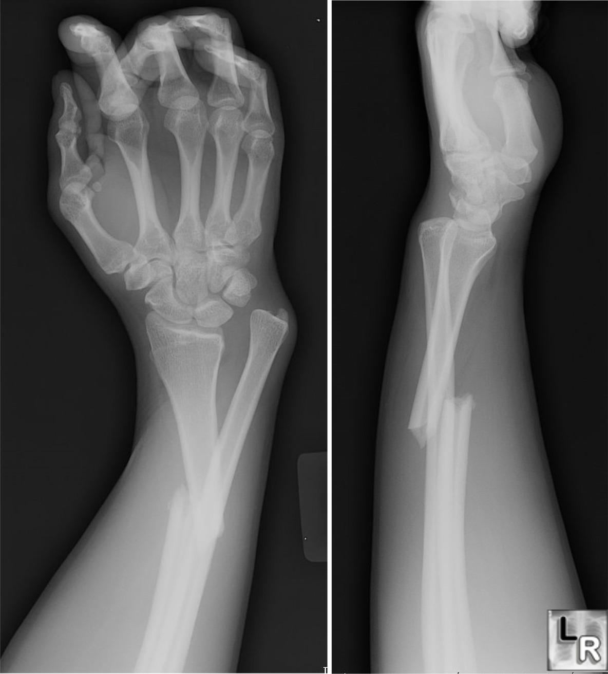 maisto į alkūnės sąnario artrozė
