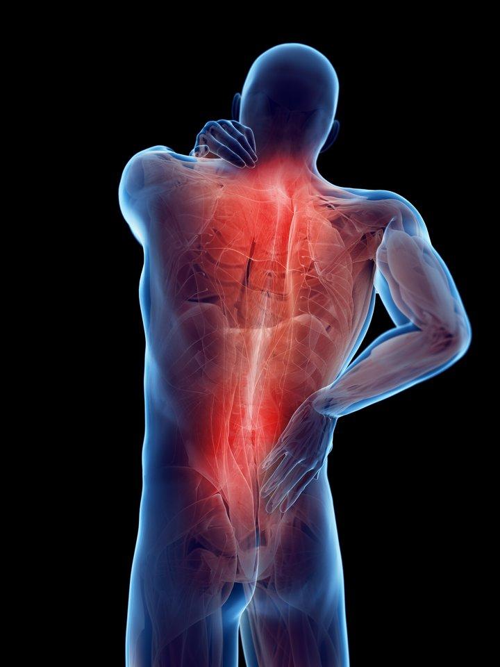 nugaros skausmas ir visi sąnariai vaistai nuo koksartrozes