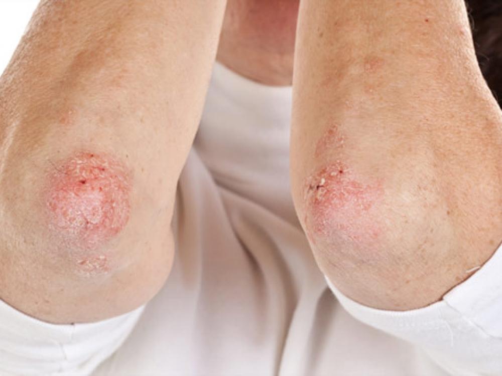 rytas skausmas ryte gydymas podagra artrozės