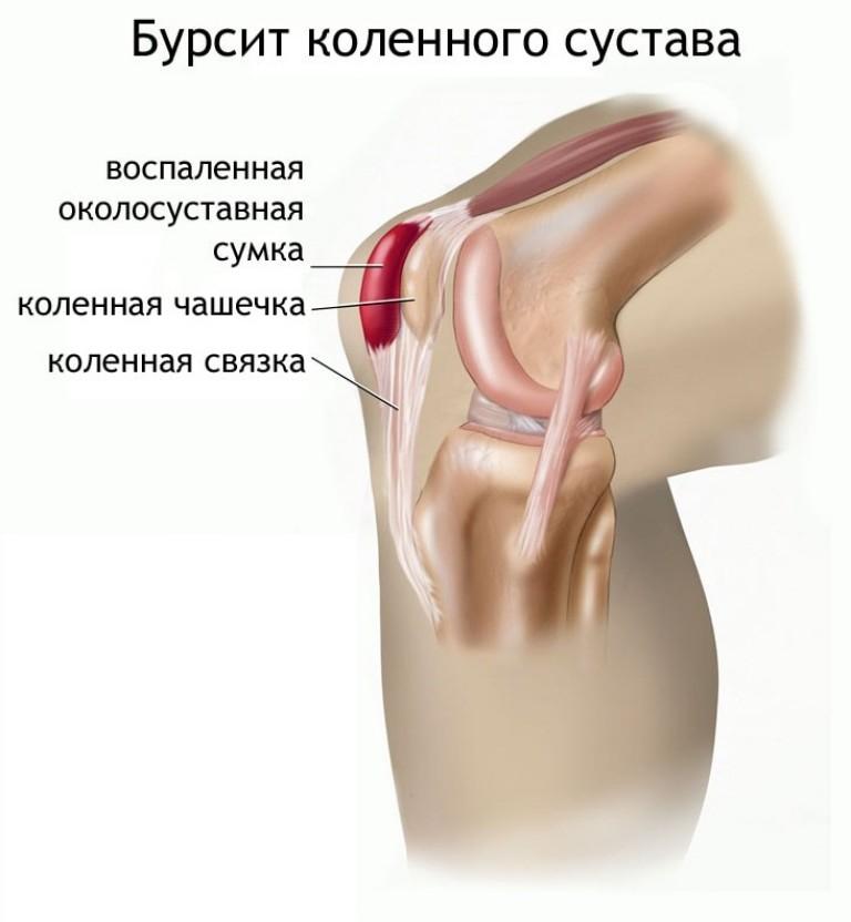 osteoartrito pėdos liaudies gynimo sąnarių