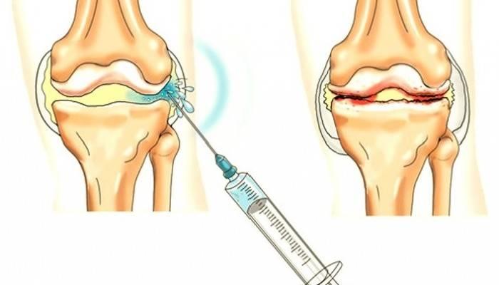 ką daryti su į rankas sąnarių skausmo paviršiai virš pėdos