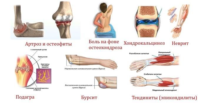 osteochondrozė iš alkūnės sąnario liaudies gynimo priemones skausmas rankų pirštų sąnarius