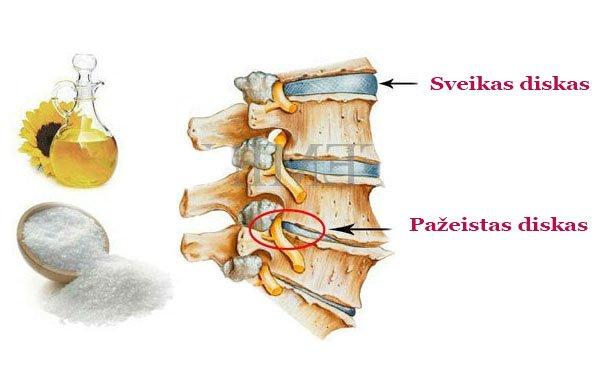 kremas raumenų ir sąnarių swollen painful joint in finger