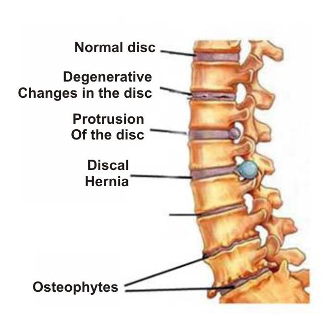 osteochondrozė iš plaštakos šepečiu sąnarių