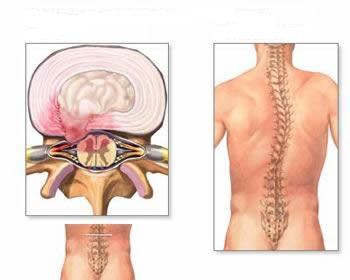 osteochondrozė juosmuo gydymas tasmen motina su sąnarių skausmas