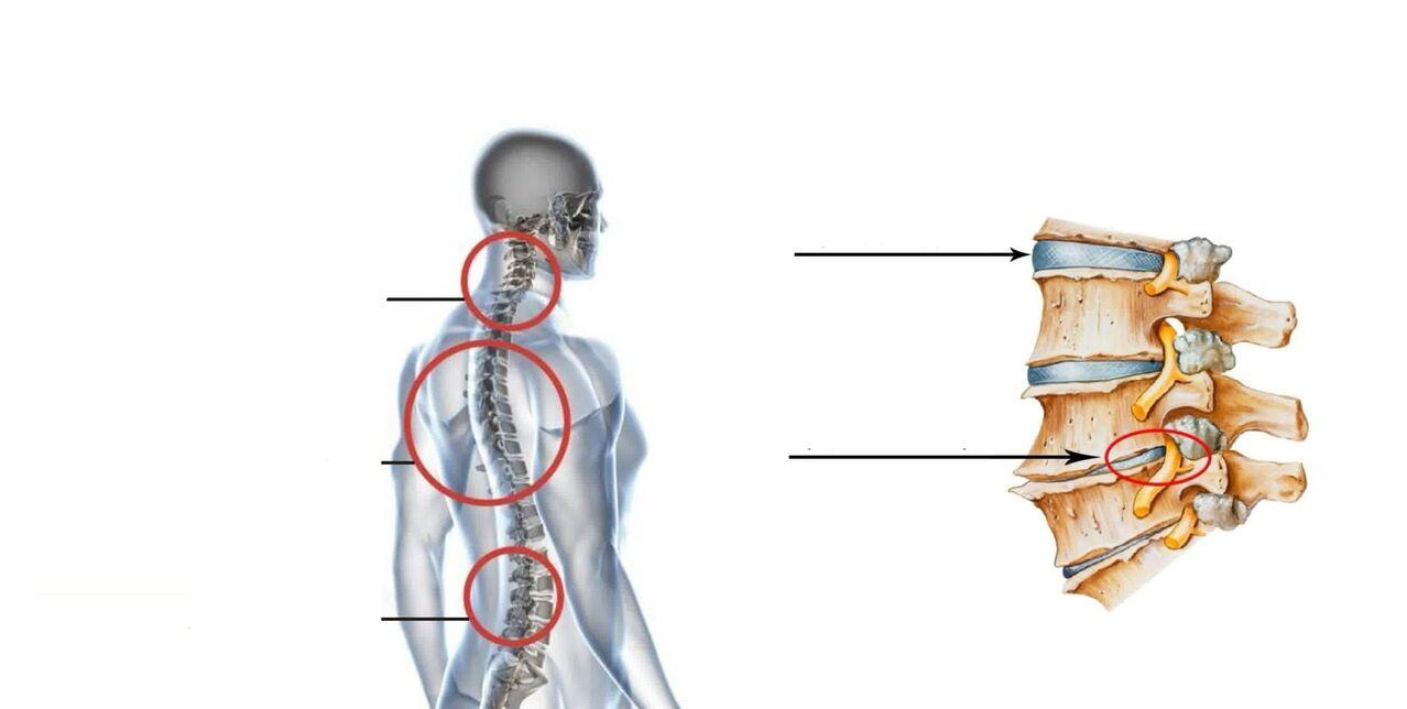 osteochondrozė rankų sąnariai ką daryti jei sąnariai skauda ant rankų